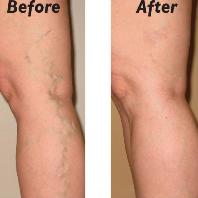 VARICEV™ : The Revolutionary Varicose Veins Ointment