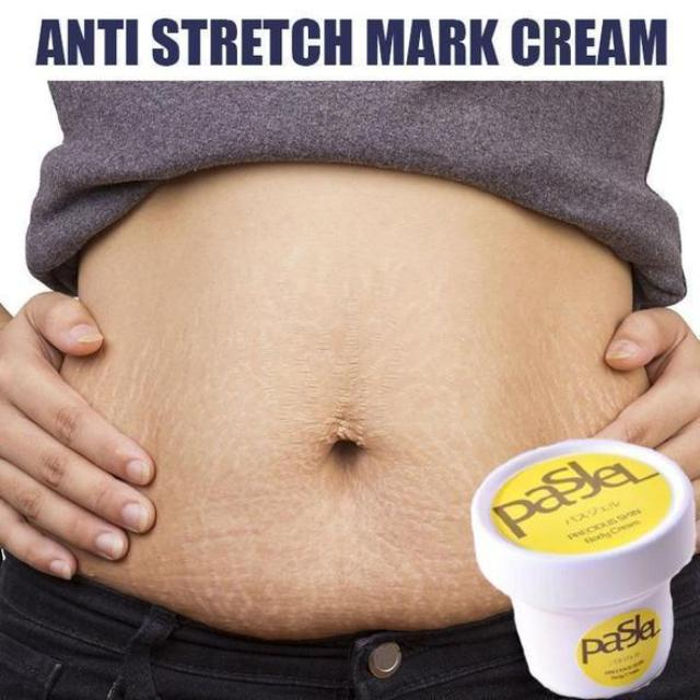 MARKGON™ : Stretch Mark Removal Cream