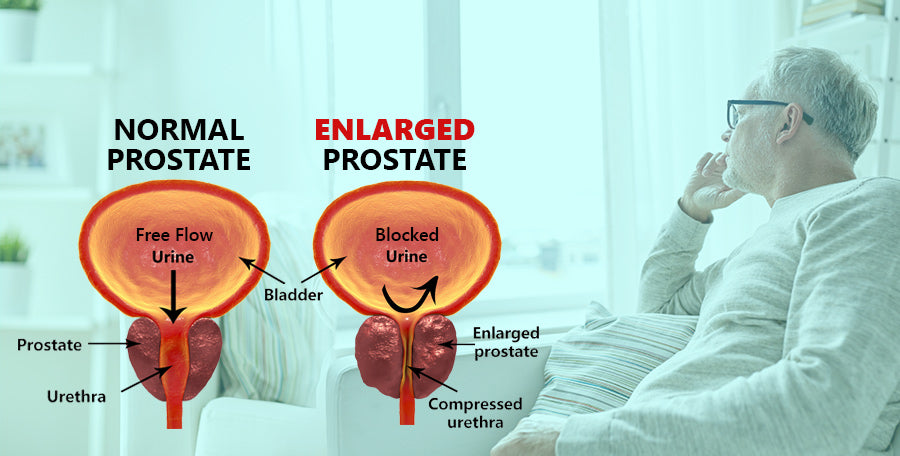Normal and Enlarged Prostate