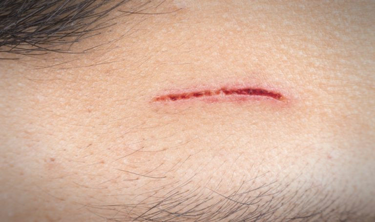 Treating Scrapes for Infections