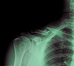 film-x-ray-show-fracture-clavicle-300x266