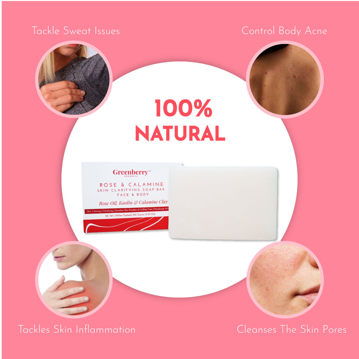 Greenberry Organics Rose & Calamine Face & Body Soap with Real Rose Extracts & 10% Calamine Clay Extracts, Soothes Irritation, Smooth Skin, Spot Treatment, All Skin Type, Unisex, 100 Grams