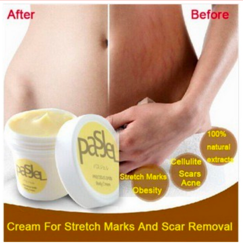 Pasjel Stretch Mark and Scars Whitening Cream