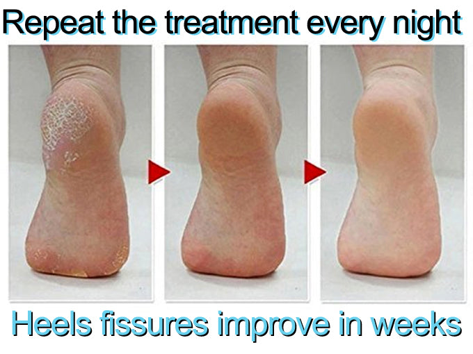 Causes and Natural Solution to Heel Fissures