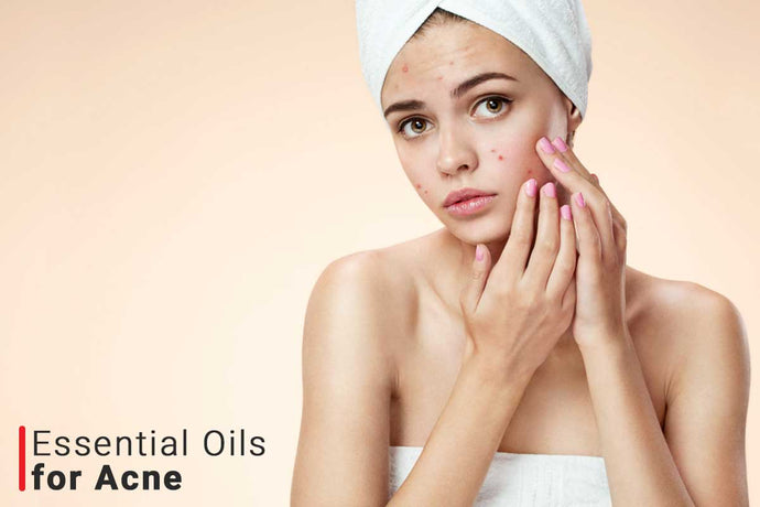 Best Essential Oils For Acne Scars and Pimples