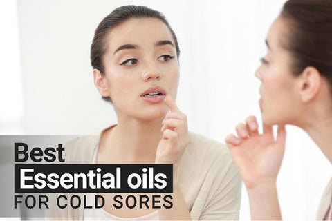 essential oil for cold sores