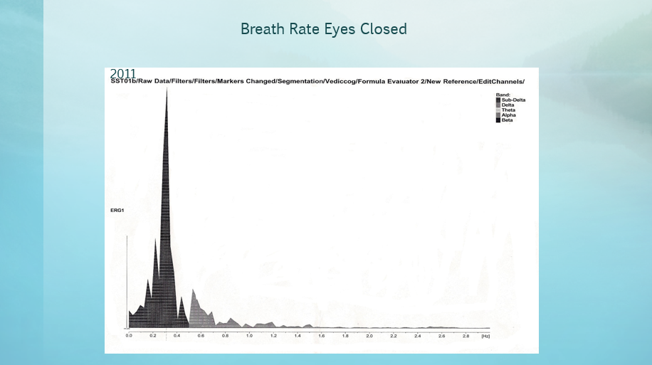 Breath Rate Eyes Closed 2011