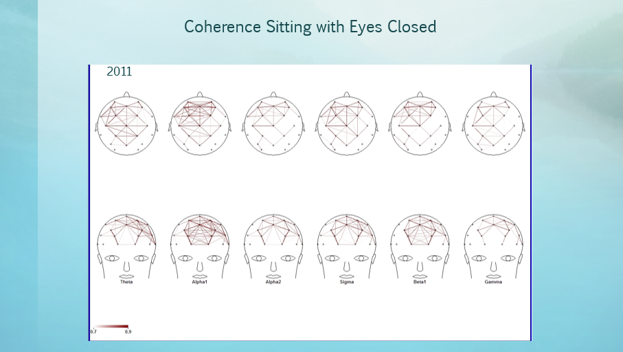 Coherence Eyes Closed 2011