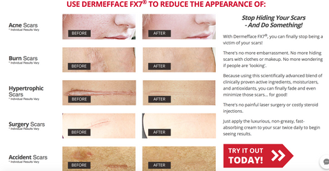 Dermafface FX7 Product Testing Results- Dare-U-Go! Blog- Scar Treatment