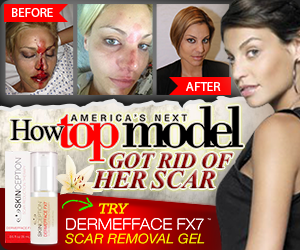 Lisa D'Amato-Top Model- scar treatment- 7 factors to consider before investing in a scar treatment