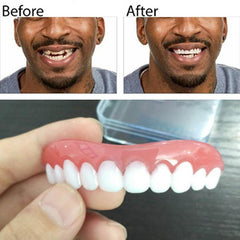 Perfect Instant Smile Comfort Flex
