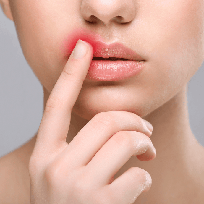 Can you Squeeze and Pop a Cold Sore?