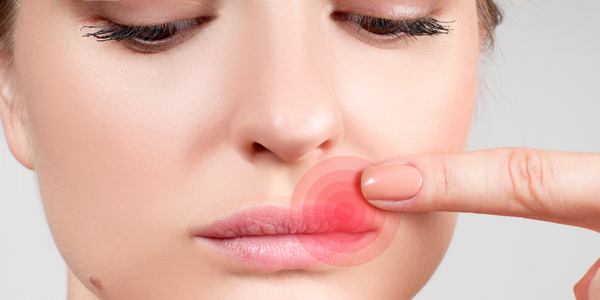 Woman pointing to early cold sore symptoms on upper lip.