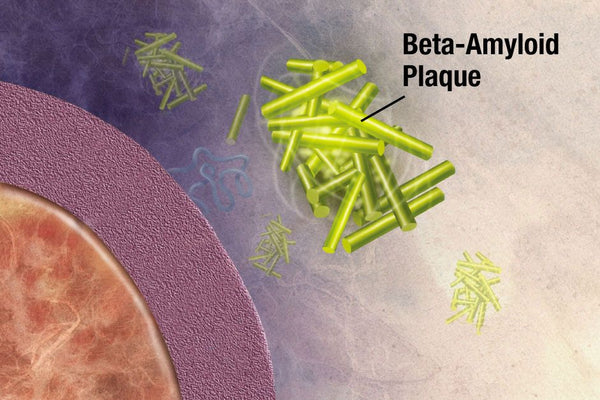 Graphic visualization of beta-amyloid plaques.