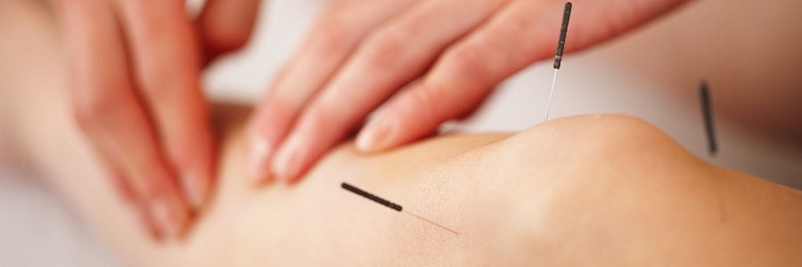Acupuncture Can Provide Pain Relief