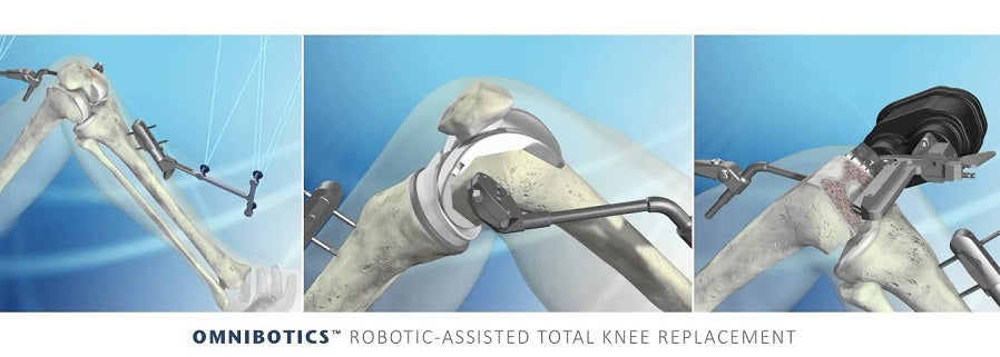 Robotic-Assisted Surgery Offers Patients Another Options For Knee Replacements