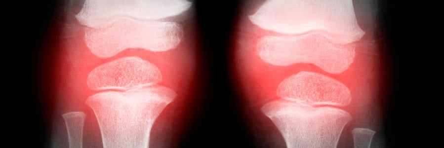 An Antioxidant May Someday Help Treat Osteoarthritis