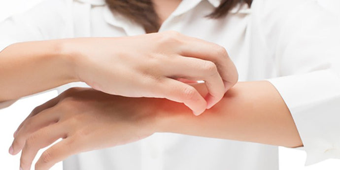 Eczema Remedies For Your Family