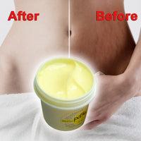 2017 Thailand Skin Body Cream Remove Stretch Marks Treatment Postpartum Repair Whitening CREAM Pregnancy Scar Removal  @ME88