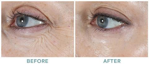 Age-Defying Blueberry Eye Cream