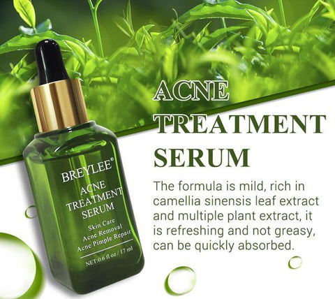 Acne Treatment Serum - MISSTLY