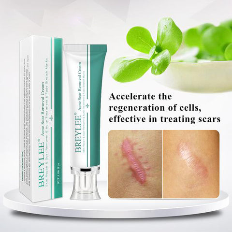 Acne Scar Removal Cream 30g - MISSTLY