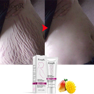 Natural Mango Stretch Mark Cream