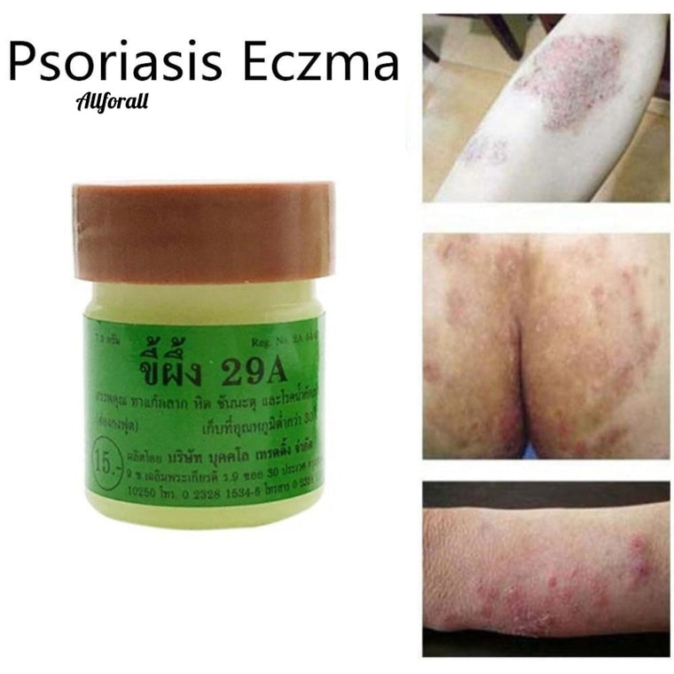 1PCS Chinese Medicine Psoriasis Eczma Cream,, Works Perfect for All Kinds of Skin, Problems Body Massage Ointment