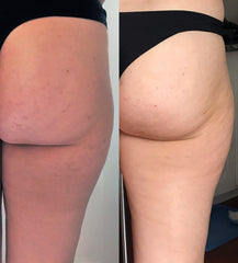 Cellulite improvement within a year