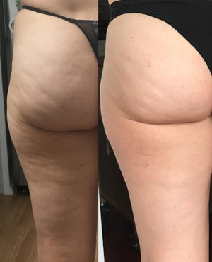 effective cellulite treatments at home
