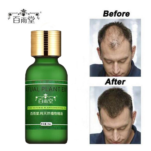 Authentic 100% Hair Growth Essential Oil
