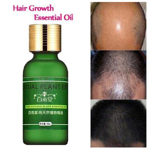Hair Growth Essential Oil For Hair Loss