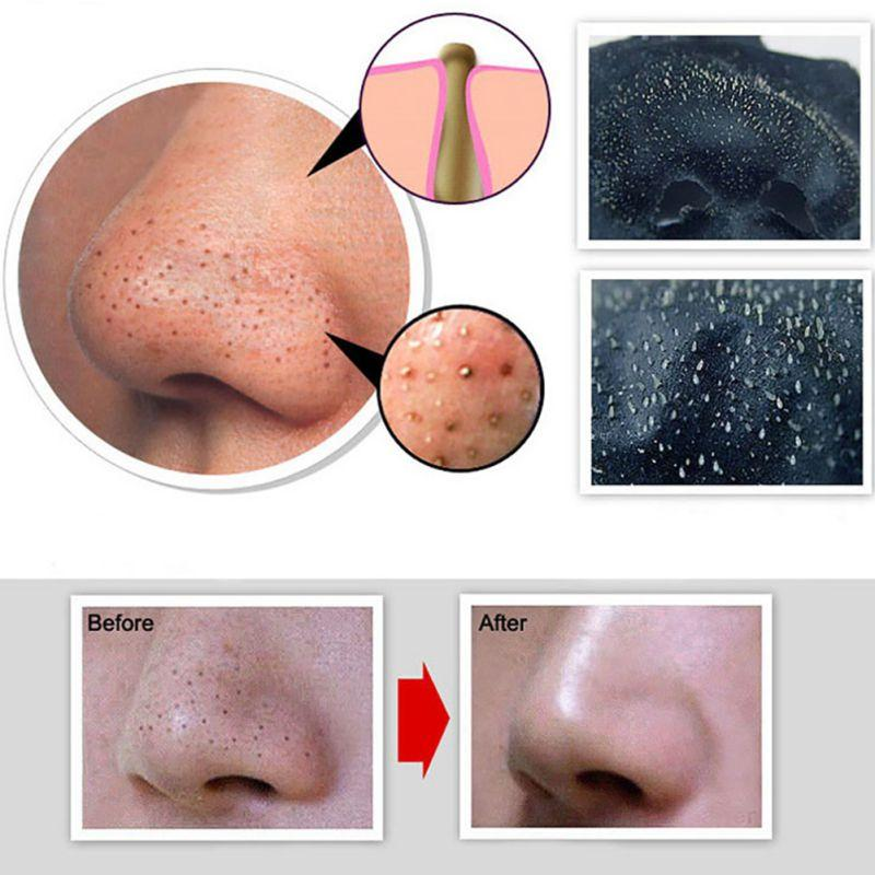 Blackhead Removal Black Mask ®