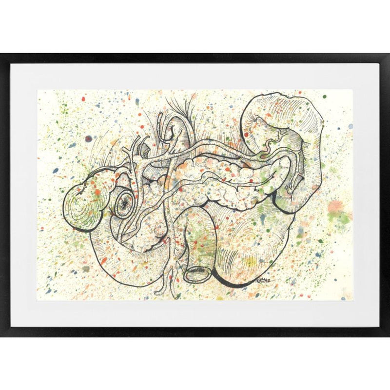 Anatomical Pancreas Splatter - 26x36 / Black Frame / Buy - Limited Edition Print