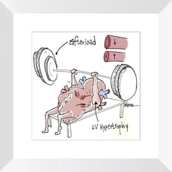Heart Pump Afterload - Limited Edition Print