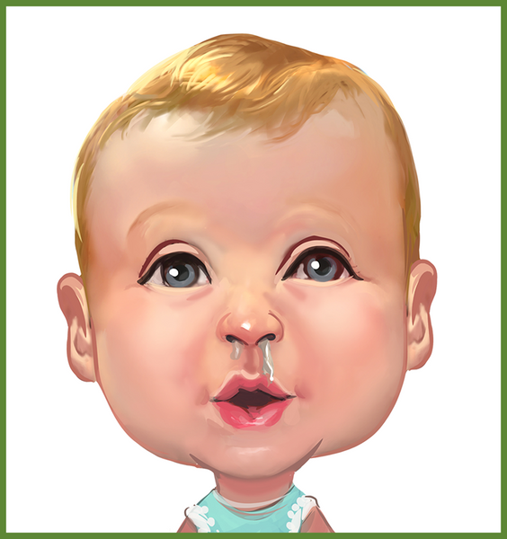 Step 1. Baby with sinus