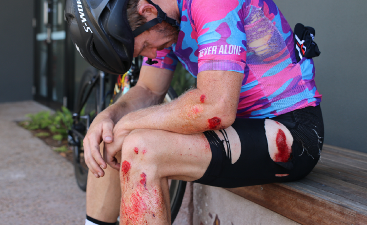 How to treat road rash