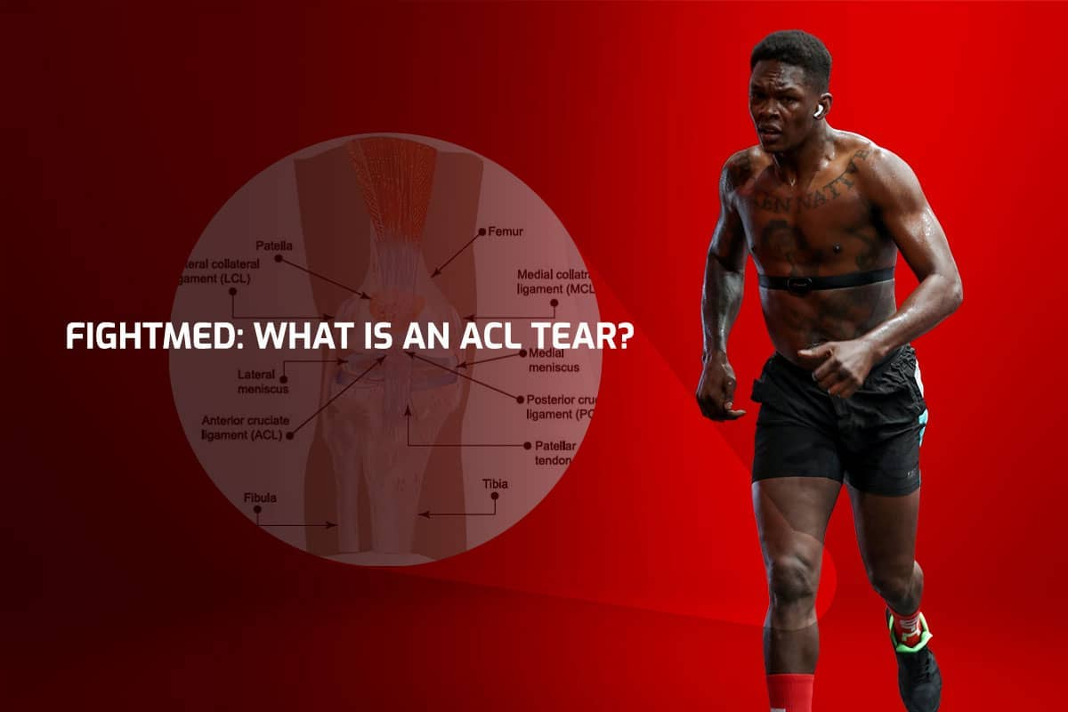 FightMed: What is an ACL tear?