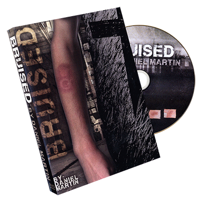 Bruised by Daniel Martin  - Trick
