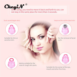 CkeyiN Mini Lady Shaver Facial Hair Remover Depilator Portable Women Epilator + Blackhead Acne Removal Vacuum Suction Device