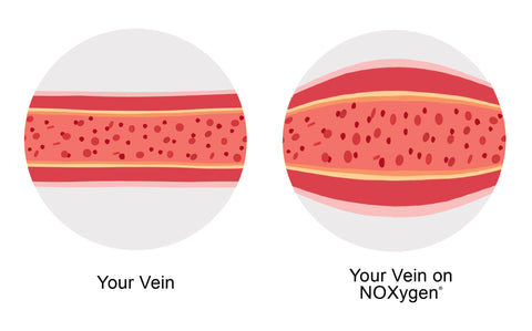 NOX vein comparison