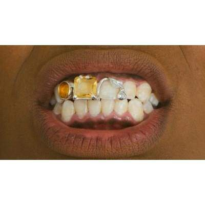 Your Teeth Are Yellow Grill by KING RELD | Nineteenth Amendment