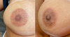 Bilateral Areola Tattoo Cover-Up