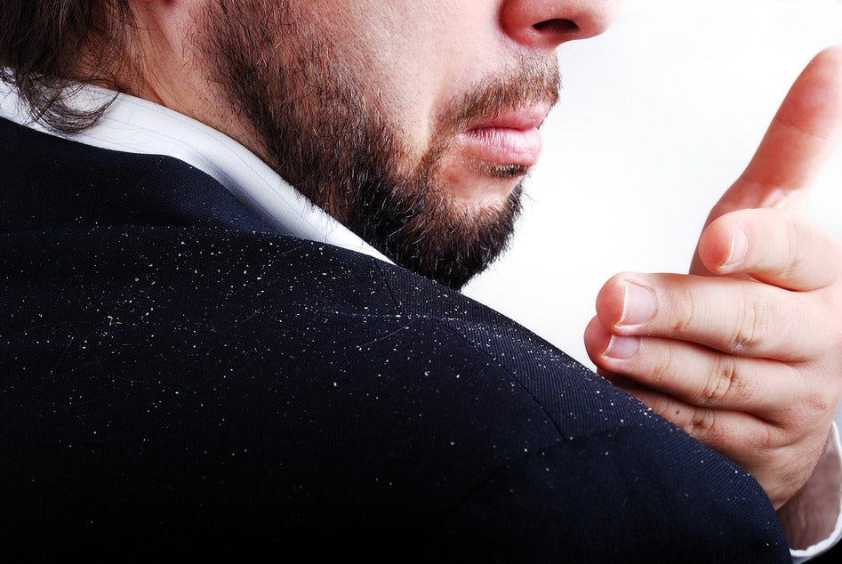 Dandruff – Are You Sure Its Dandruff?