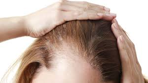 How much hair would you lose on drug-induced telogen effluvium?