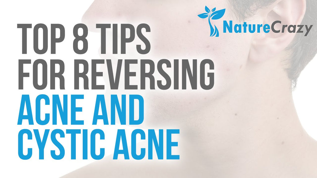 Nature Crazy's Top 8 Tips For Reversing Acne and Cystic Acne