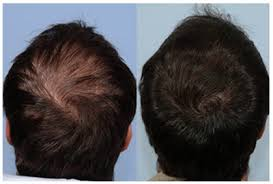 I Have Been Taking Propecia Finasteride For 8 Months I Have Not Not Nature Crazy Llc