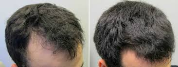 How Effective Are Hair Loss Treatments Like Biotin Rogaine Or Propec Nature Crazy Llc