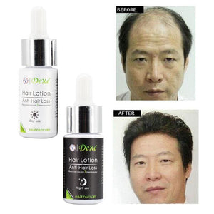 30Ml Potent Type Hair Loss Product Fast Hair Growth Grow Restoration Yuda Pilatory Stop Effective