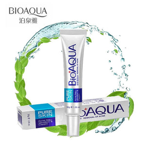 Bioaqua 30g Anti Acne Cream / Oil Control / Shrink Pores/ Acne Scar Remove/ Face Care - MBMCITY